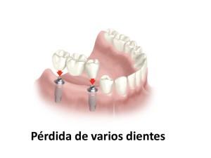 Pérdida de varios dientes