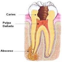 absceso-endodoncico