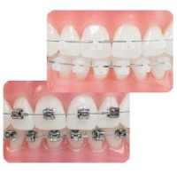 sonria-ortodoncia-brackets